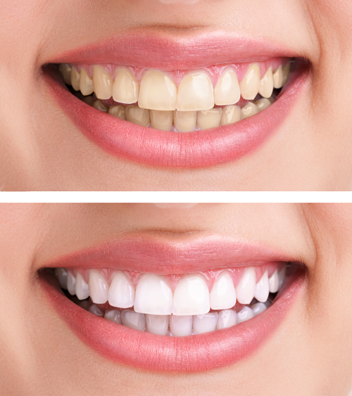 teeth whitening in Houston TX teeth bleaching Cypress TX